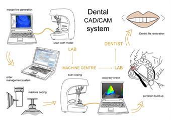CADCAM system