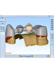 Screen shot from Renishaw's incise dental CAD software