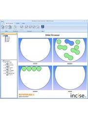 Screen shot from Renishaw's incise dental CAM software