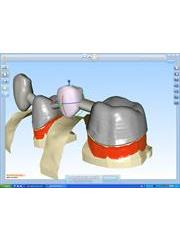 3D View of incise software